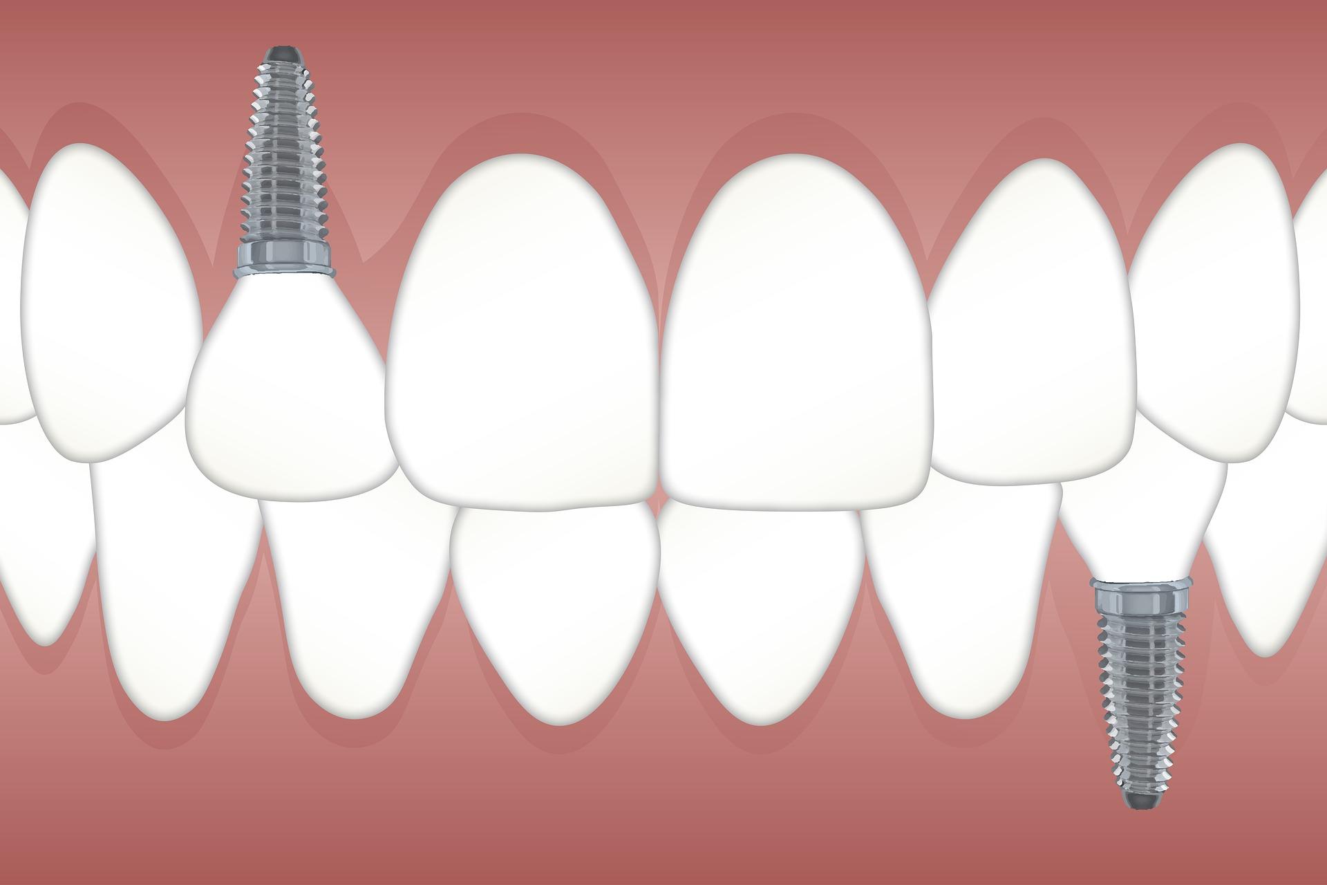 implanty - najważniejsze informacje