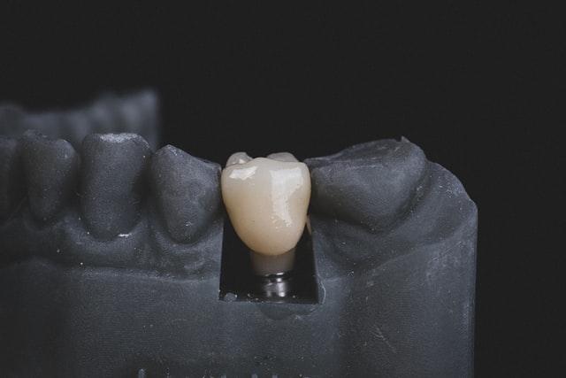 Ile-trwa-zalozenie-implantu-zeba